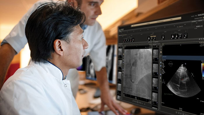 IntelliSpace Cardiovascular orchestrating your interventional workflow