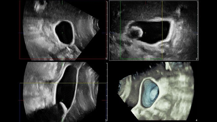 Q-App General Imaging 3D Quantification thumbnail