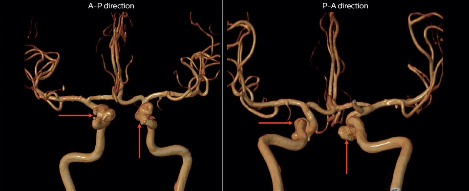 magnetic resonance angiography of multiple cerebral aneurysms