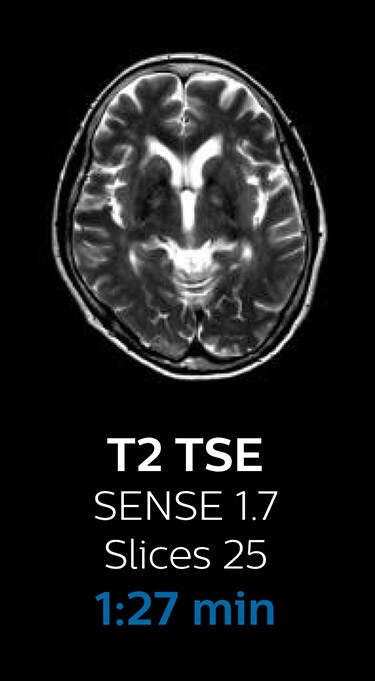 T2 TSE magnetic resonance imaging