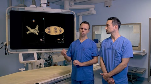 KODEX-EPD imaging for cryoballoon ablation