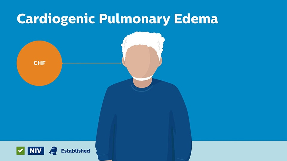 Cardiogenic Pulmonary Edema answer video